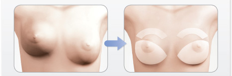 breast implant change tunisia